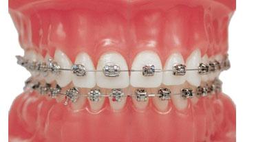 Niềng răng mắc cài thẩm mỹ Ưu Đãi Tới 12Tr