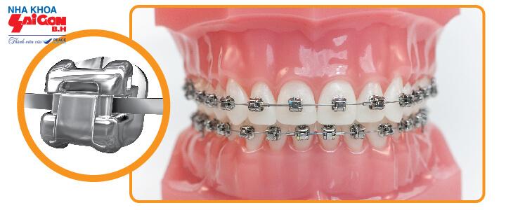 Niềng răng mắc cài sức và kim loại – Bảng Giá Chi Tiết