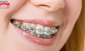 Niềng răng tại Đồng Nai ở địa chỉ nào uy tín và đáng tin cậy?