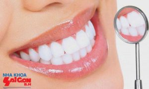 Hiệu quả tốt nhất từ bọc răng sứ thẩm mỹ