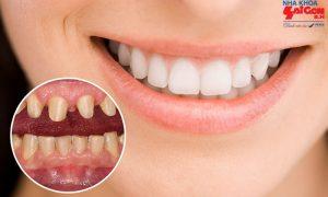 Ứng dụng của kỹ thuật bọc răng sứ trong ngành nha khoa