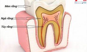 Tư vấn phương pháp bọc răng sứ không lấy tủy