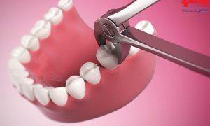 An toàn và dễ chịu khi nhổ răng không đau bằng sóng siêu âm