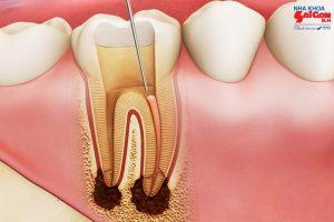 tuy răng