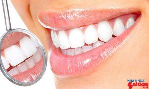 Những thông tin không thể bỏ qua khi trồng răng cấm