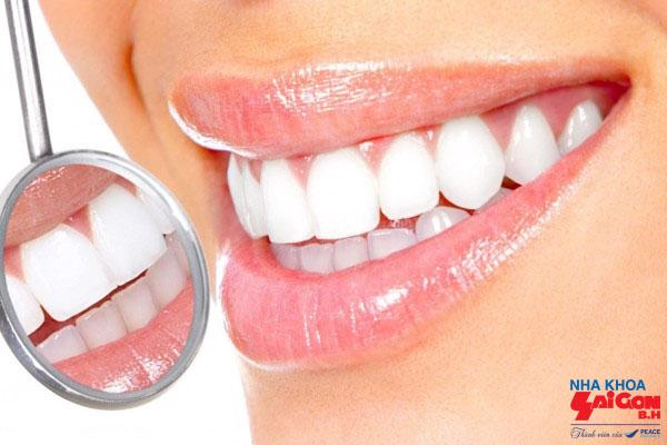 Bọc răng sứ không cần mài có được không