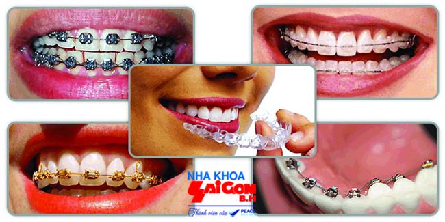 Niềng răng trả góp tại nha khoa Sài Gòn B.H – Tại sao không?