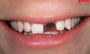 Những phương pháp trồng răng cửa cố định hiệu quả nhất