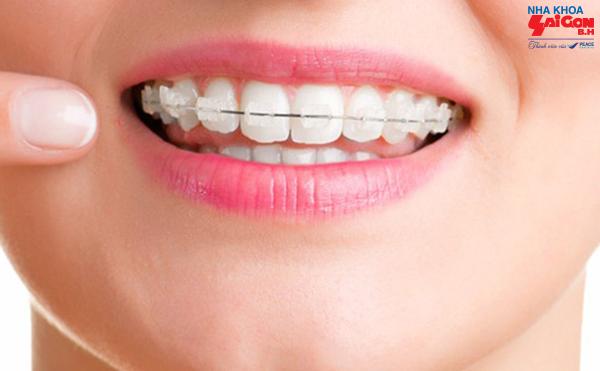 Niềng răng giải pháp thẩm mỹ cho bạn nụ cười tỏa sáng