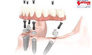 implant – Phương pháp trồng răng giả số 7 đơn giản mà hiệu quả