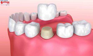 Bọc răng sứ bị cộm do đâu và làm thế nào khắc phục