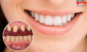 Khi nào nên sử dụng phương pháp bọc răng sứ?