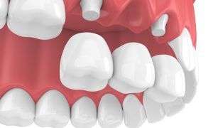 Trồng răng sứ bằng phương pháp bắc cầu có ưu điểm gì?