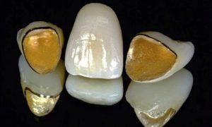 Bọc răng sứ thẩm mỹ loại nào là tốt nhất?