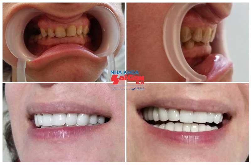 Thời gian bọc răng sứ thẩm mỹ mất khoảng bao lâu?