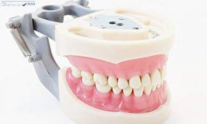 Bạn biết gì về trồng răng giả bằng hàm tháo lắp