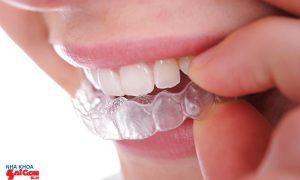 Niềng răng tháo lắp và những ưu điểm nổi bật