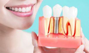 Phương pháp trồng răng hàm sứ và chi phí thực hiện