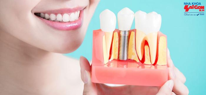 Những lưu ý quan trọng khi trồng răng implant cho răng cửa