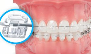 Phương pháp chỉnh nha niềng răng là gì