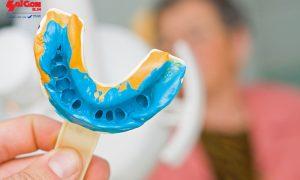 Bọc răng sứ như thế nào cho hiệu quả?