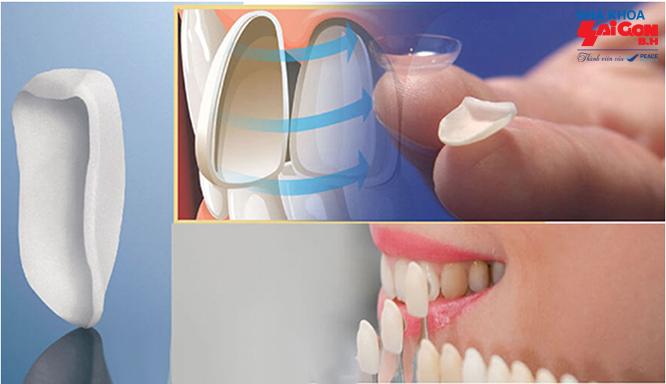 Bọc răng sứ veneer là gì?