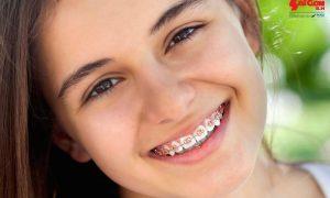 Niềng răng cho trẻ nên chọn thời gian nào cho phù hợp?