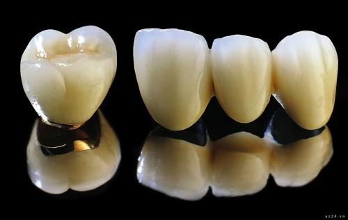 Bọc răng sứ titan giá bao nhiêu là đảm bảo chất lượng