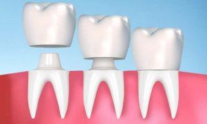 Bọc răng sứ có gây nên tình trạng hôi miệng hay không?