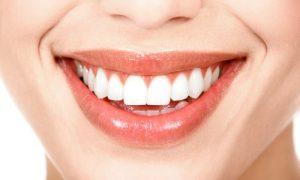 Bọc răng sứ có bền không và những lợi ích mà nó mang lại