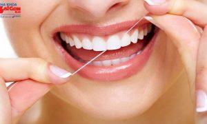 Một vài kinh nghiệm niềng răng không mắc cài invisalign