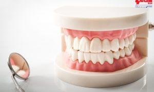 Trồng răng cửa có đau không và những điều bạn cần biết