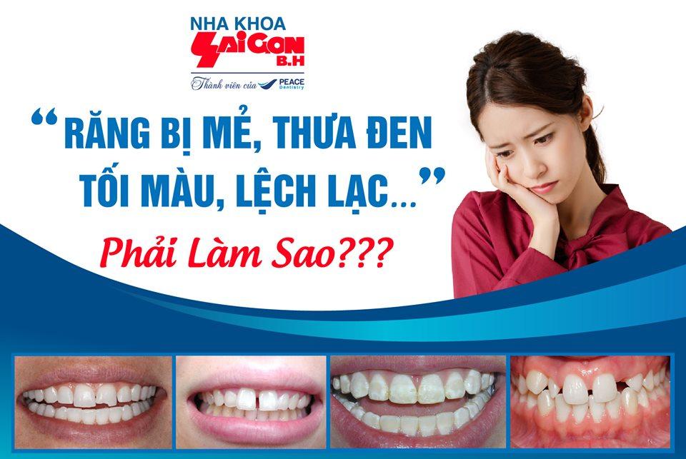 bọc răng sứ có bền không