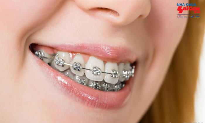 Ưu điểm của phương pháp niềng răng kim loại