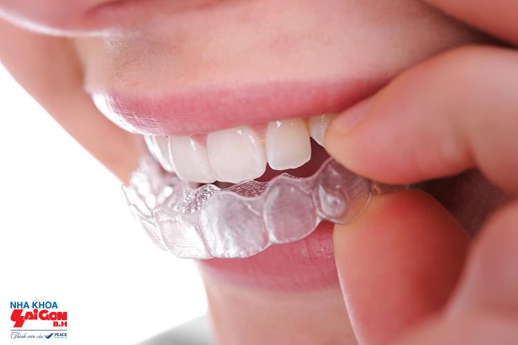 Niềng răng trong suốt có giá bao nhiêu