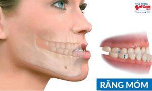 Răng bị móm nhẹ có niềng răng được hay không