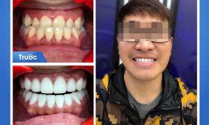 Giải pháp nào cho răng mọc lệch