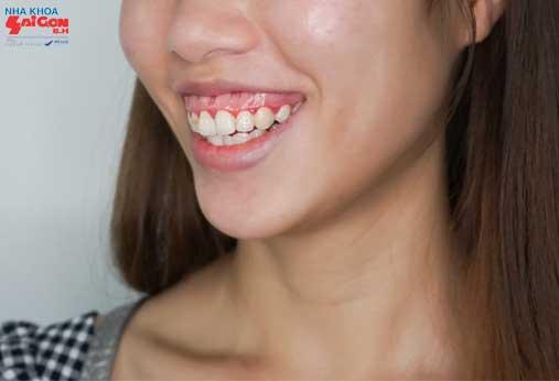 Cười hở lợi và cách khắc phục hiệu quả nhất