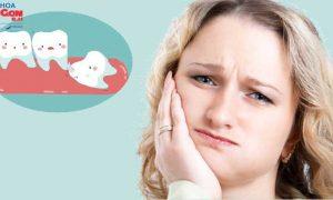 Mọc răng khôn bị đau phải làm sao? Điều trị dứt điểm