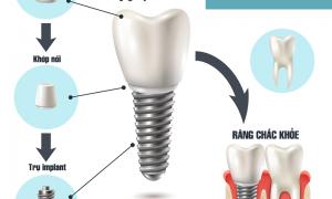 Trồng răng implant có tốt hay không