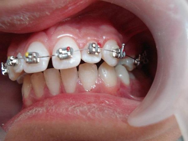 Thời gian niềng răng mất trong bao lâu thì xong