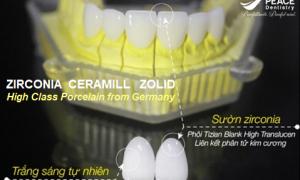 Răng toàn sứ Zirconia Ceramill Zolid và những ưu điểm nổi bật