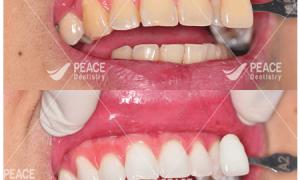 Tư Vấn Tẩy Trắng Răng Có Đau Ê Buốt Không