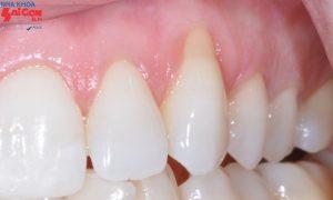 Bị hở chân răng dấu hiệu nhận biết và cách điều trị