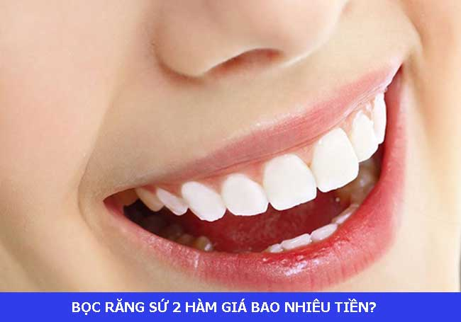 boc-rang-su-nguyen-ham-gia-bao-nhieu