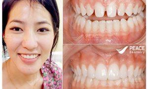 Giải đáp thắc mắc bọc răng sứ có tốt không ?