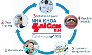 Cách nhổ răng khôn an toàn và hiệu quả