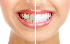 tẩy trắng răng uy tín