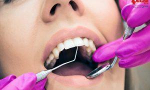 Nên nhổ răng vào lúc nào ?