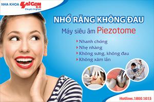 co-nen-nho-rang-khon